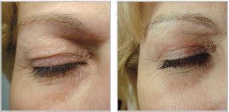 PlexR ooglidcorrectie GrohClinic