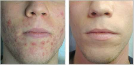 Plexr acne GrohClinic