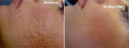 Plexr acnelittekens GrohClinic