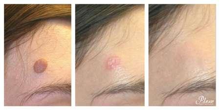 Plexr huidaandoeningen GrohClinic