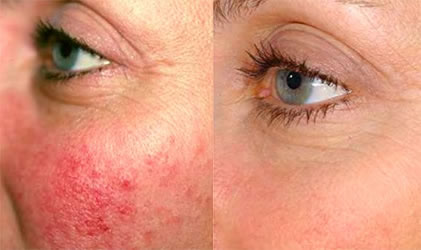 GrohClinic Thermavein Rosacea voor en na foto