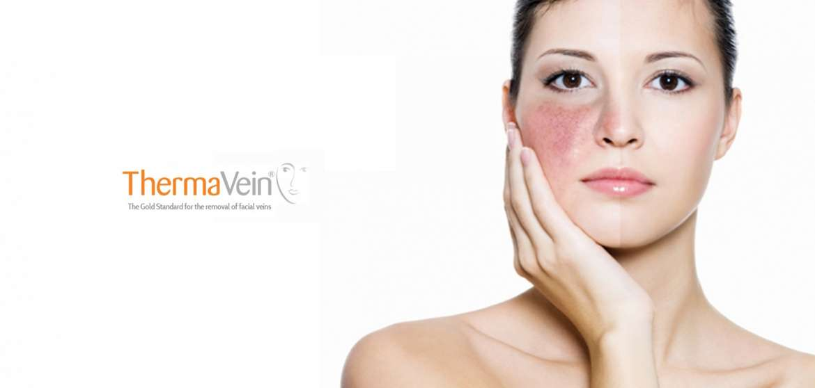 GrohClinic Thermavein