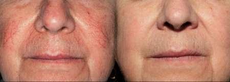 GrohClinic Thermavein Couperose voor en na foto